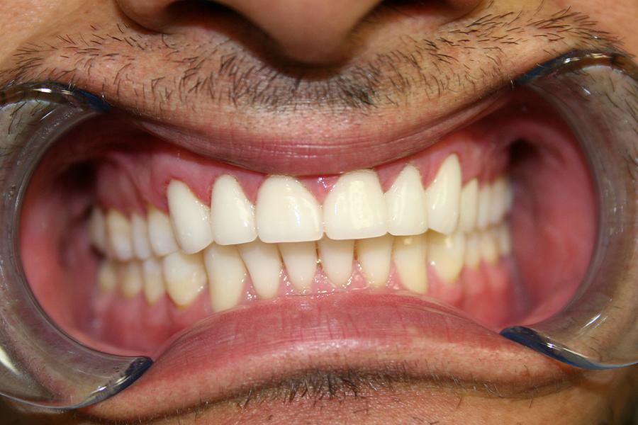 After Veneers Patient 4