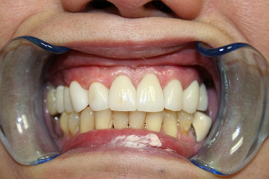 After Veneers Patient 3
