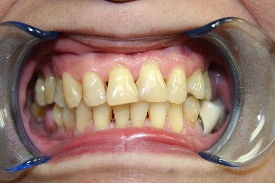 Veneers and Crowns Monrovia and Duarte Patient 1.jpg