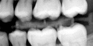teethXray