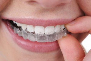 Close Up of Mouth Inserting Top Invisalign Braces