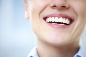 Dental Veneers Monrovia and Duarte