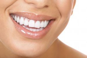 TeethWhitening_Monrovia_Brown