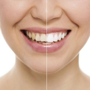 TeethWhitening_Monrovia_Comparison