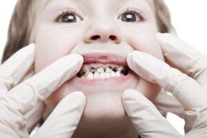 pediatric dentist montovia