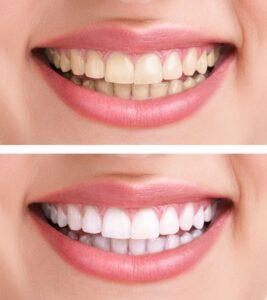 Teeth Whitening Monrovia