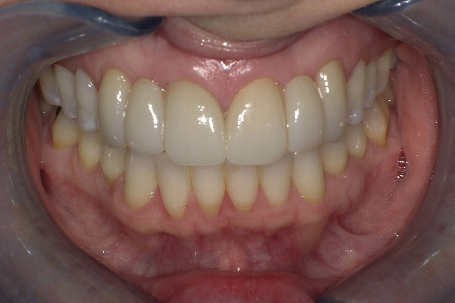 dr-q-before-and-afters-6-11-bridge-after