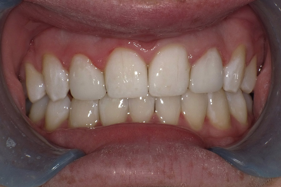 dr-q-before-and-afters-bonding-lateral-after