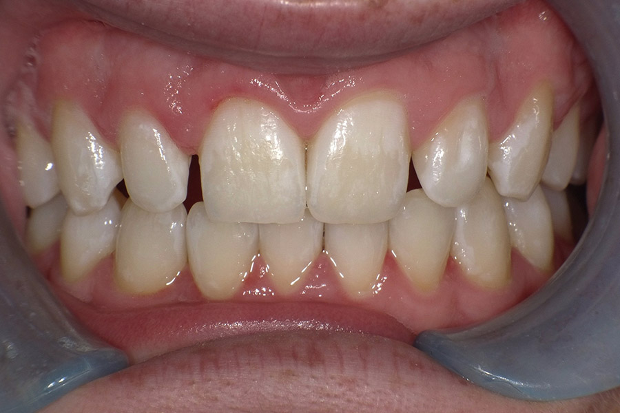 dr-q-before-and-afters-bonding-lateral-before