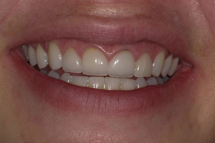 dr-q-before-and-afters-veneers-after