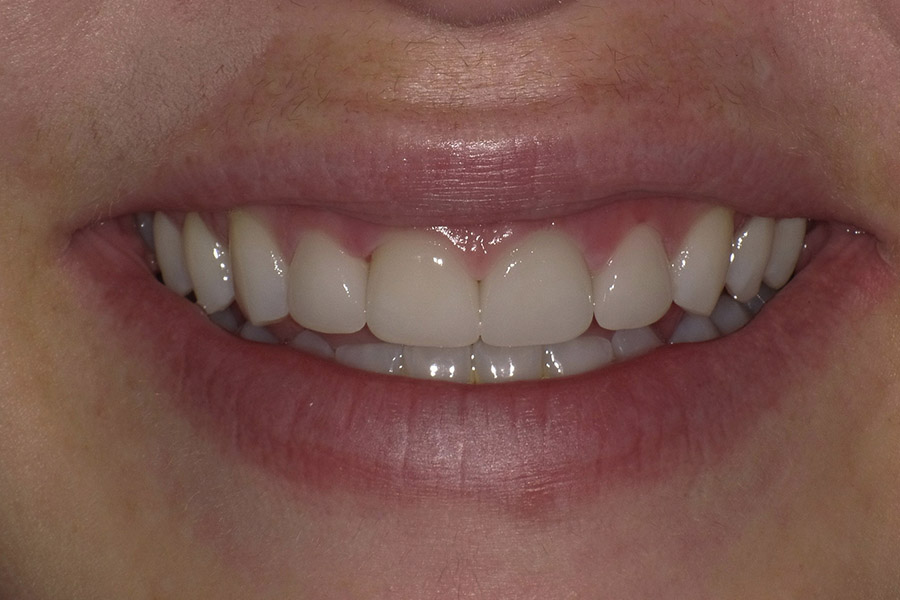 dr-q-before-and-afters-veneers-before